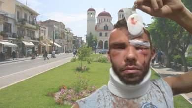 Άγριος ξυλοδαρμός μεταπτυχιακού φοιτητή από «παλικαράδες» στο Ρέθυμνο – Τι λέει ο πατέρας του θύματος