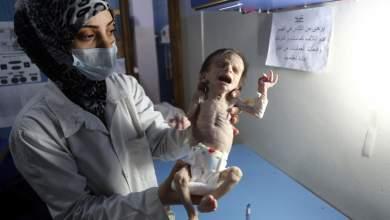 Στη Συρία τα παιδιά πεθαίνουν από την πείνα [ΒΙΝΤΕΟ - Πολύ σκληρές εικόνες]